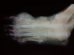Left Foot Tophi Xray Photograph