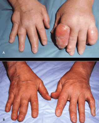 Tophaceous Hands Photographs