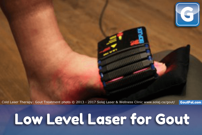 Low Level Gout Laser Therapy