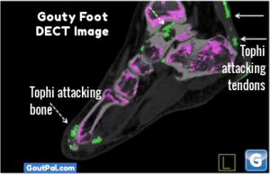 Gouty Foot DECT Image