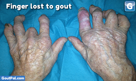Gouty Fingers Photo