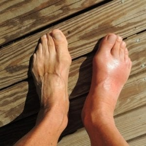 Skin Discoloration of Gouty Foot photo