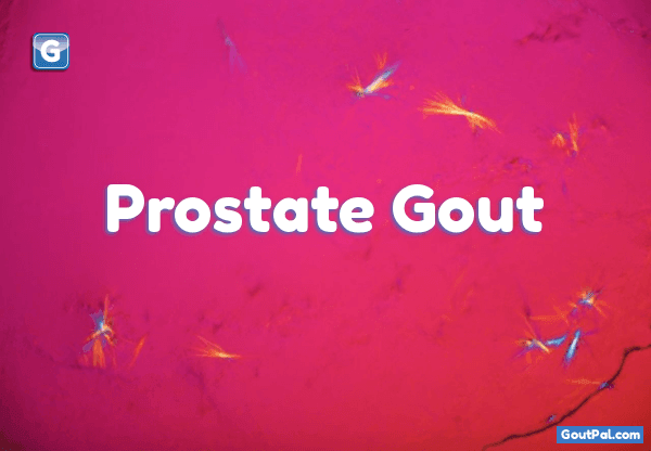 Prostate Gout image