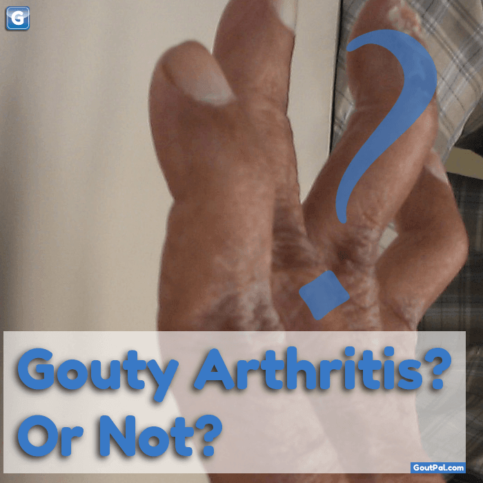 Gouty Arthritis Or Not photo