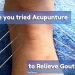 Does Gout Pain and Acupuncture work for you?