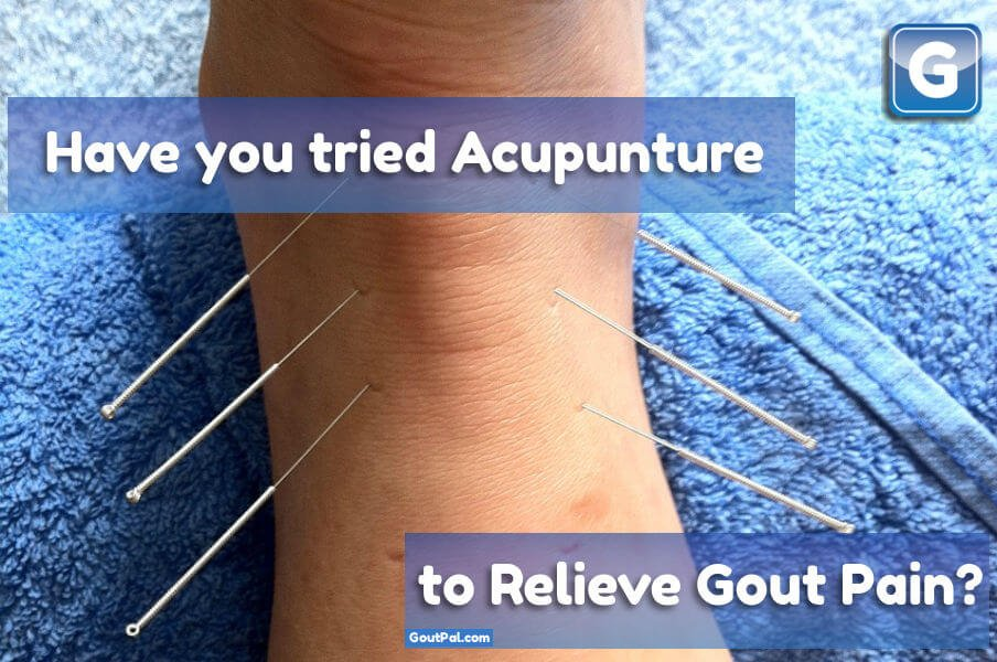 How do you Treat Gout Pain With Acupuncture?