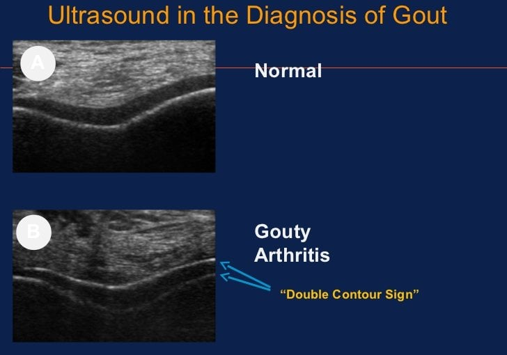 Ultrasound of early chronic gout duration timeline