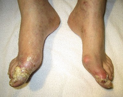 Understand the Symptoms of Gout photo