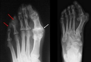 Gout, Bunion, or both X-rays