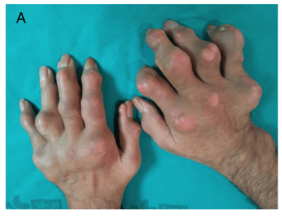 Tophaceous Gout in Hands photo